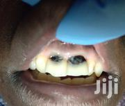Dental Services Available@Victorous Dental-kireka | Health & Beauty Services for sale in Central Region, Kampala