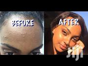 Oxy Medicated Acne Pads | Skin Care for sale in Central Region, Kampala