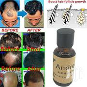 Hair Growth Cream | Hair Beauty for sale in Central Region, Kampala
